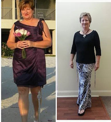 Connie - Lost 34 pounds